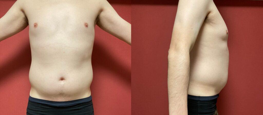 トレーニング前の体型